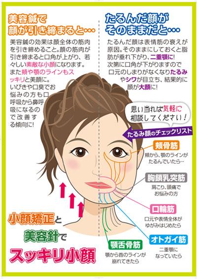 美容鍼のポスターデザイン