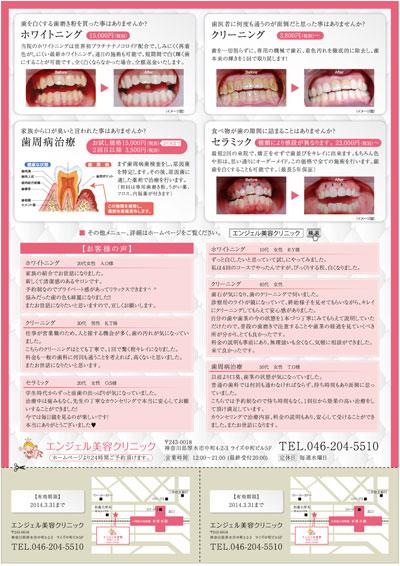 美容歯科のチラシデザイン(裏)