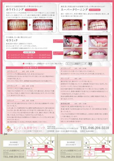 美容歯科クリニックのチラシデザイン(裏)